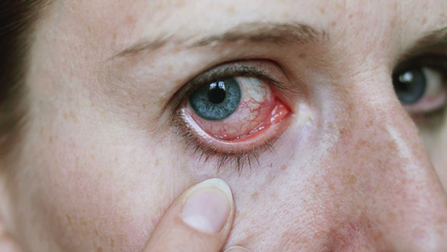 Acanthamoeba Keratitis photo