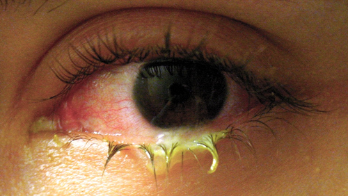 Bacterial Conjunctivitis photo