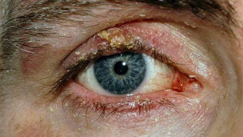 Blepharitis photo
