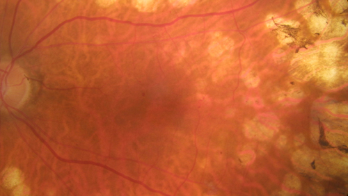 Diabetic Macular Oedema photo