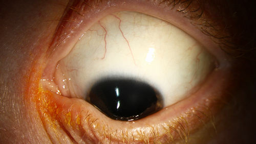 Keratoconus photo