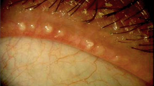 Meibomian Gland Dysfunction photo