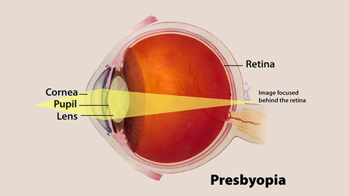 Presbyopia photo
