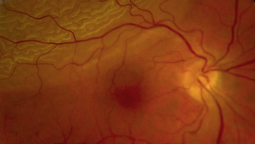 Retinal Detachment photo
