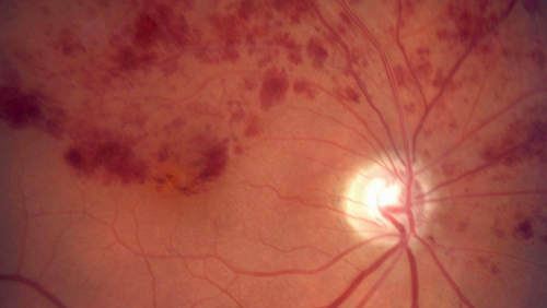 Retinal Vein Occlusion photo