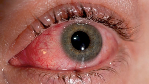 Viral Conjunctivitis photo