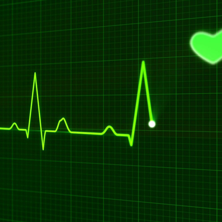 Tens of millions of Americans may have AFib and not know it