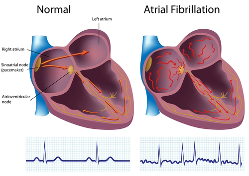 Electrical activity of a normal heart (left) and a heart with atrial fibrillation (right). - CDC