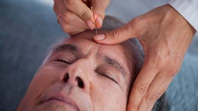 Man recieves acupuncture treatment to eyebrow