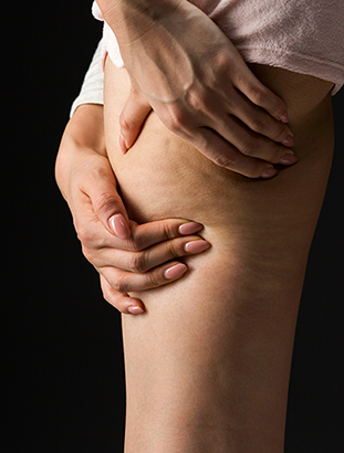 Cellulite Removal Silver Spring, MD
