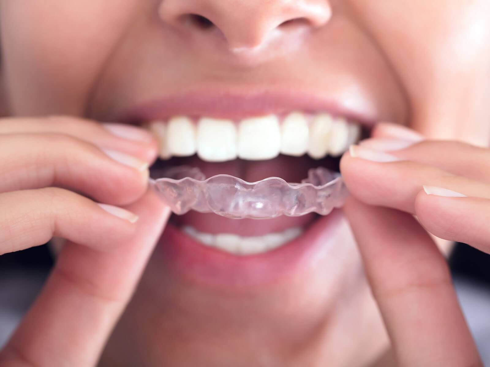 Comfortable Invisalign Pittsburgh