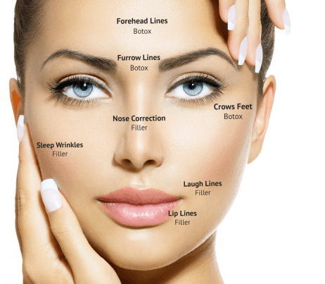 map of face injection options
