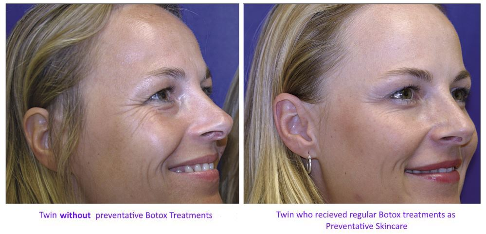 Botox Treatment Pittsburgh