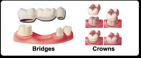 Bridges and Crowns