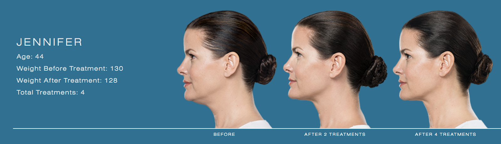 series of photos showing woman's chin thinning