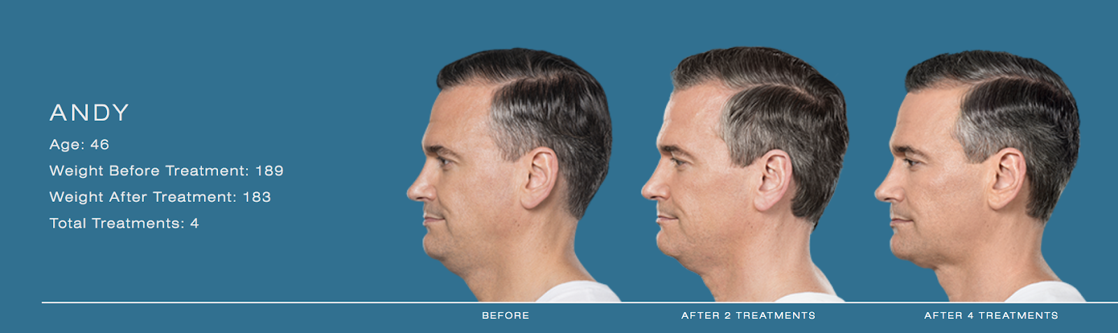 series of photos showing man's chin thinning