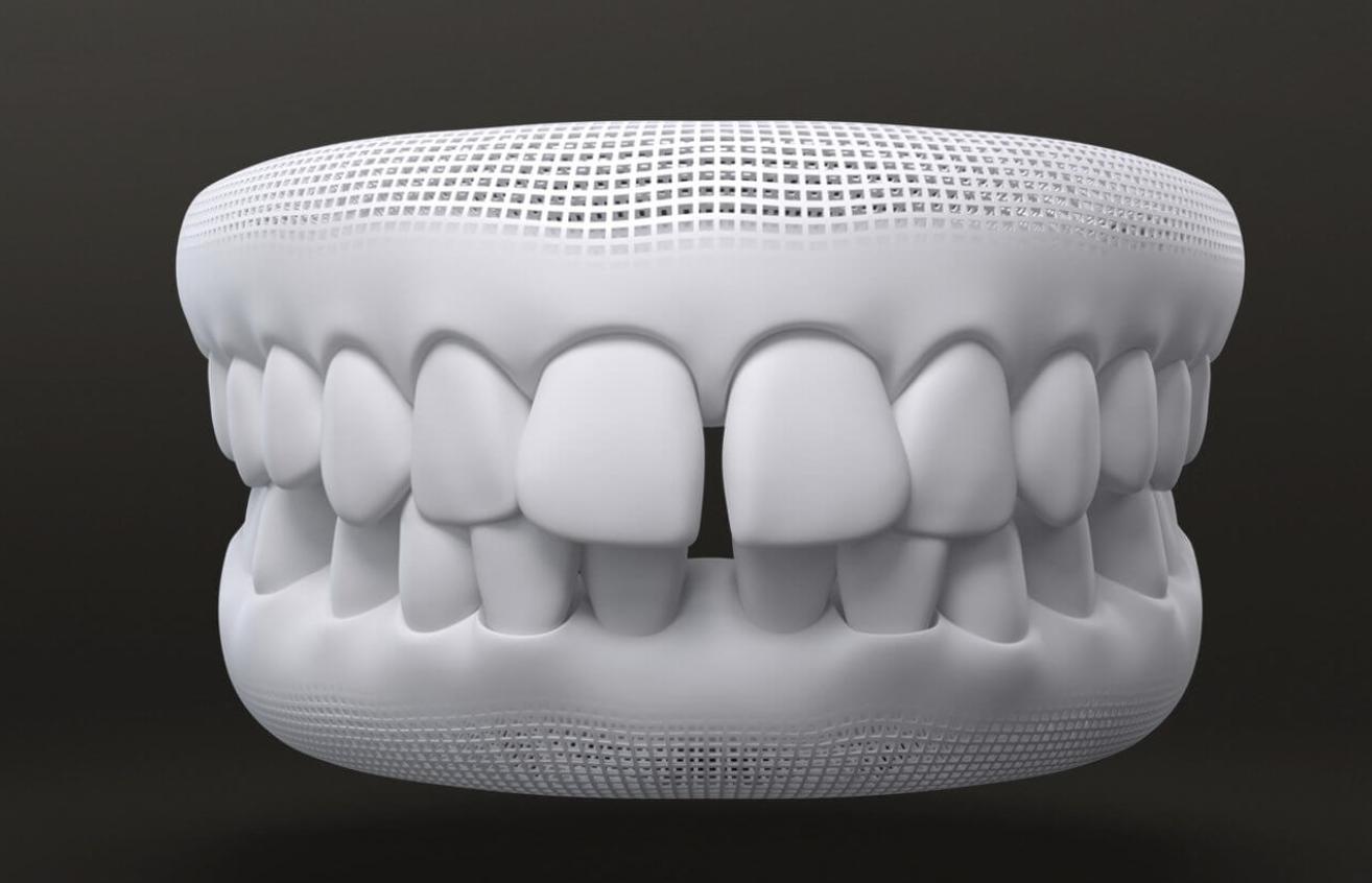 graph of gap teeth