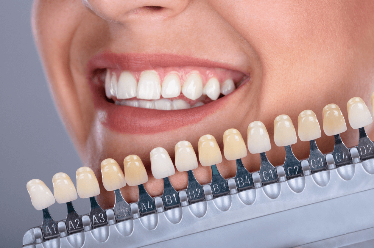 Beautiful Smile Invisalign Pittsburgh