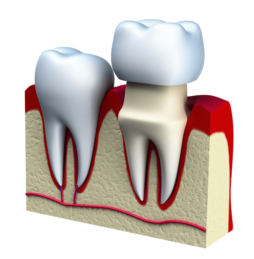 Dental Crowns Pittsburgh
