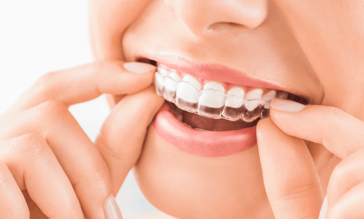 Invisalign Pittsburgh Dentist
