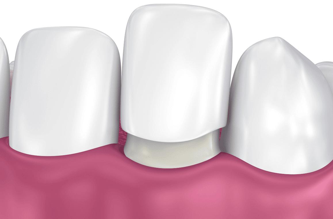 dental caps pittsburgh