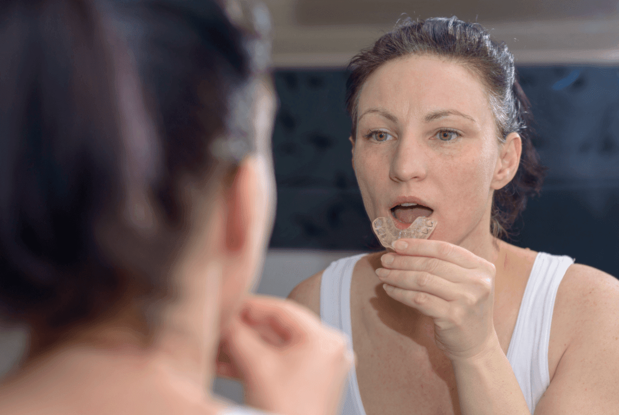 woman placing mouth guard in mouth