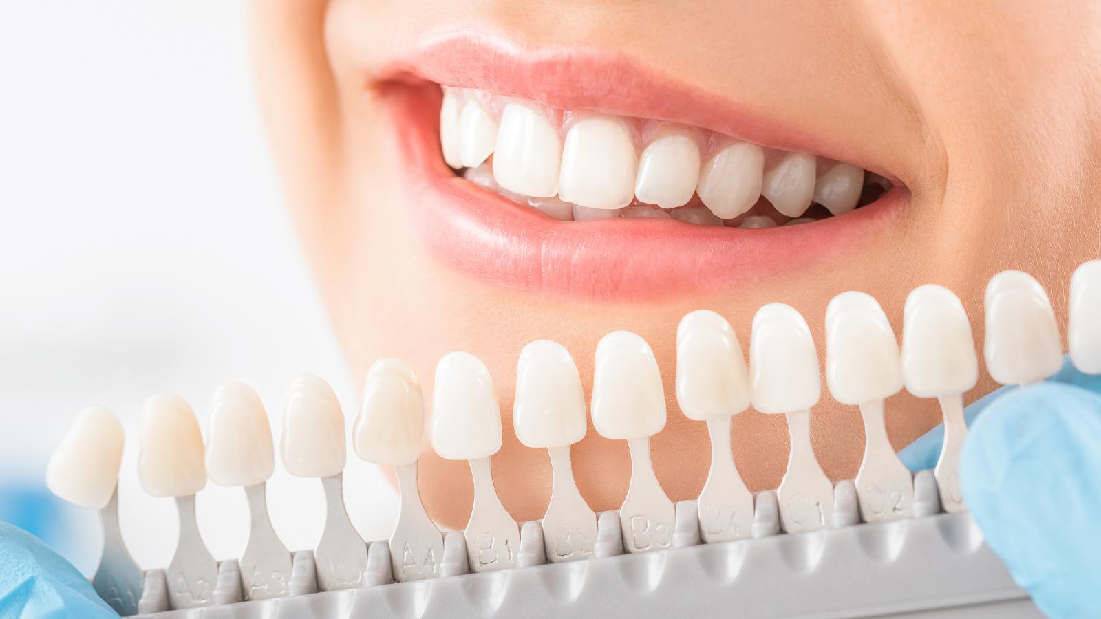 closeup of dentist choosing crown tooth color