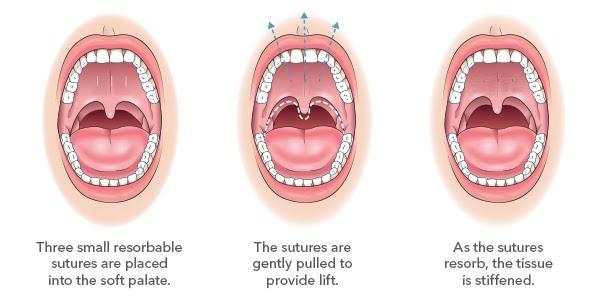 Elevoplasty procedure