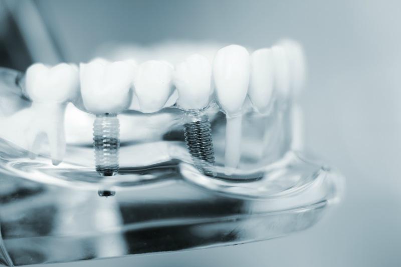 dental implants at Smileplicity Dentistry