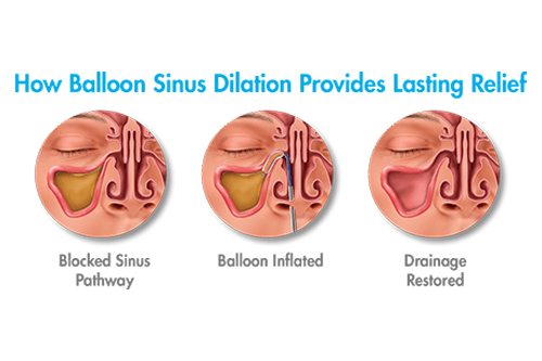 Sinusitis Patient Relief Procedure