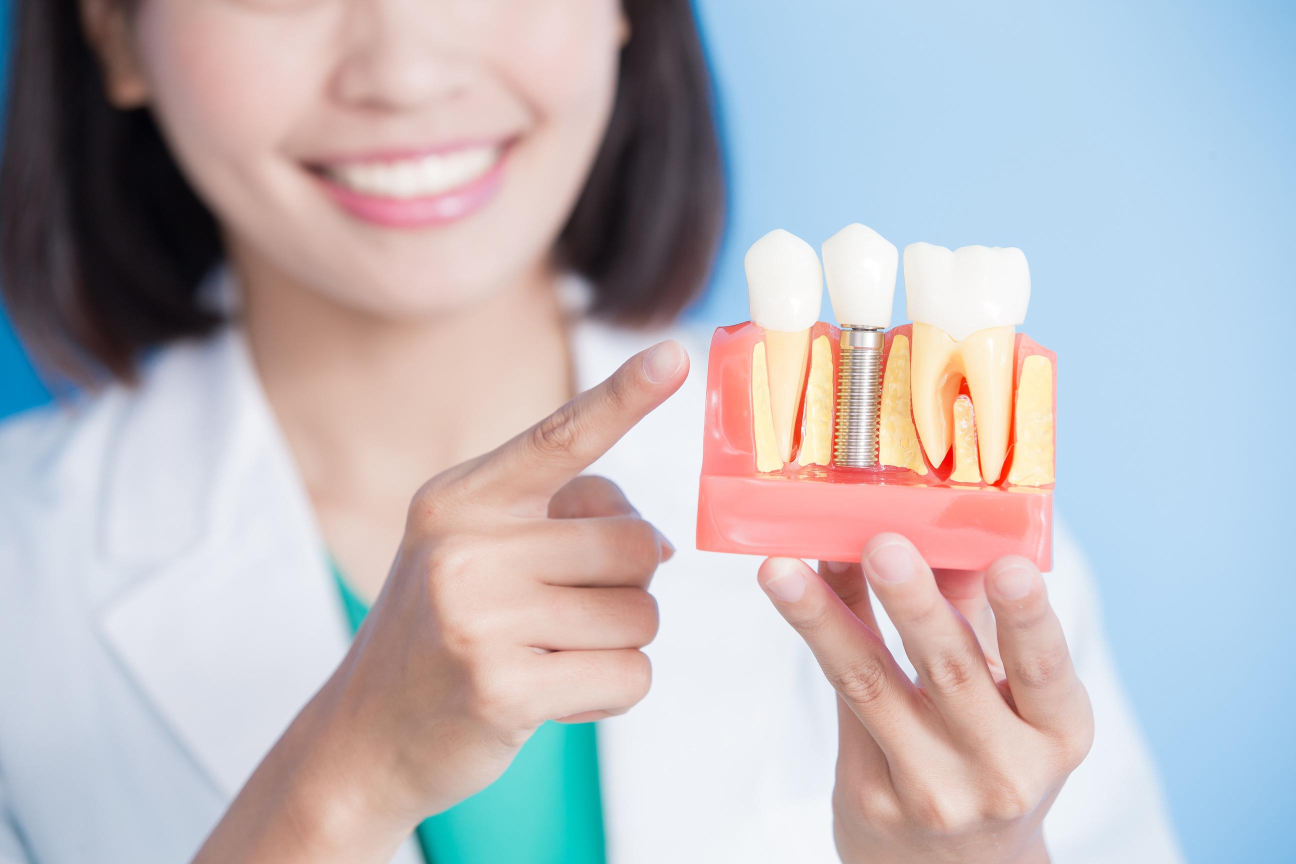 How Dental Implants Prevent Jaw Bone Loss