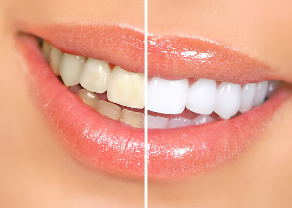 Does Teeth Whitening Cause Sensitivity? What to Know Before Treatment