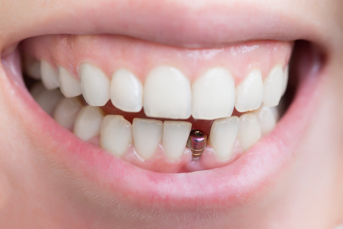 Healing After Dental Implants – What To Expect As You Recover