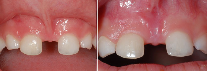 Frenectomy treatment at Poulos & Somers