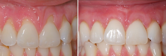 before and after soft tissue treatment at Poulos & Somers