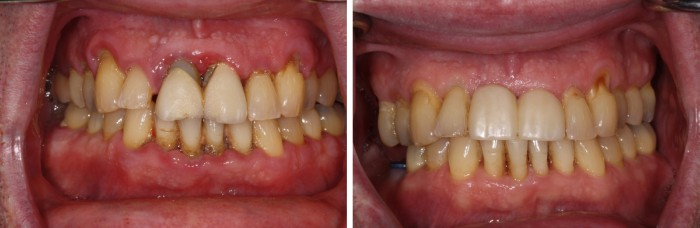 Before and after Lanap treatment