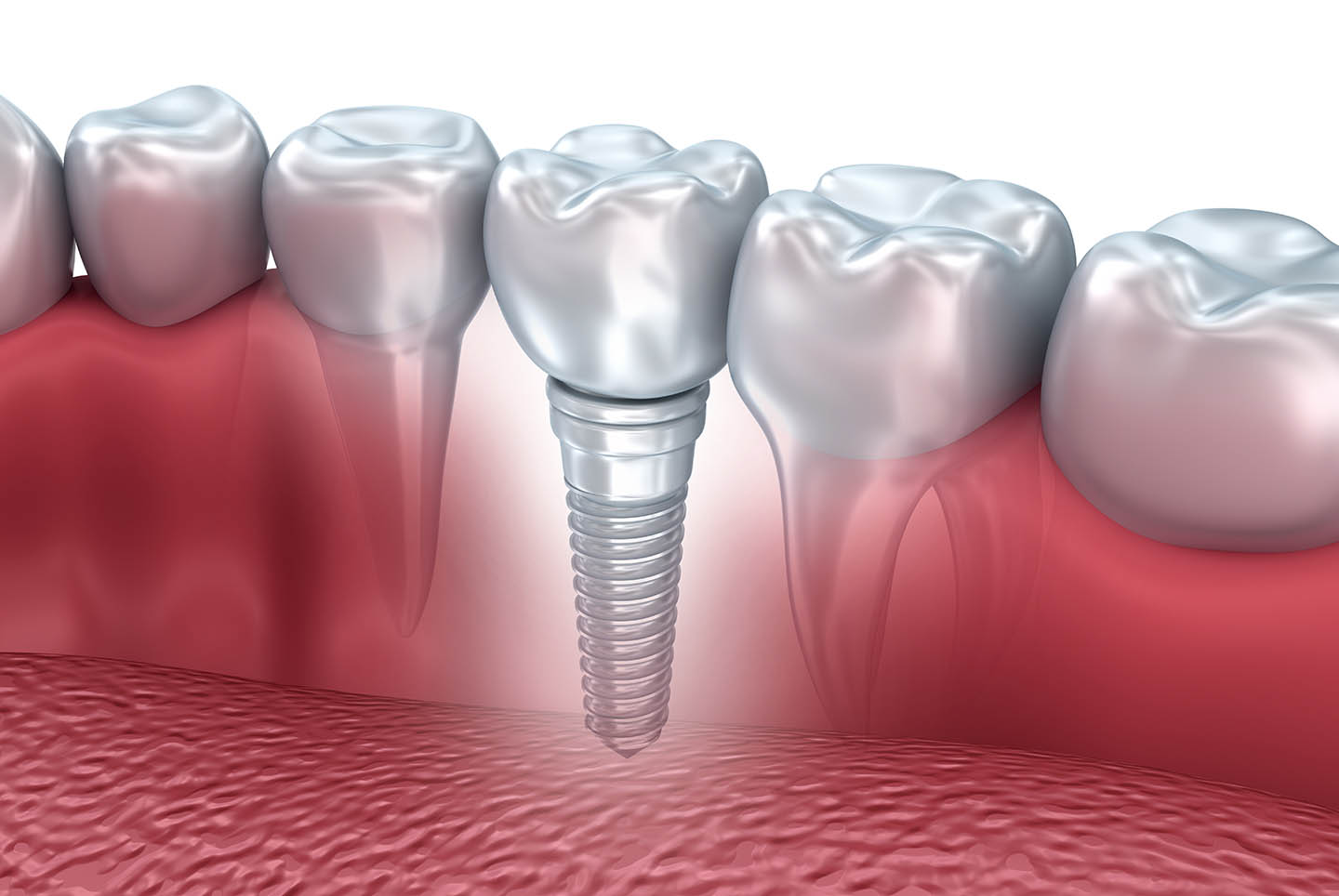 Tooth implant graphic