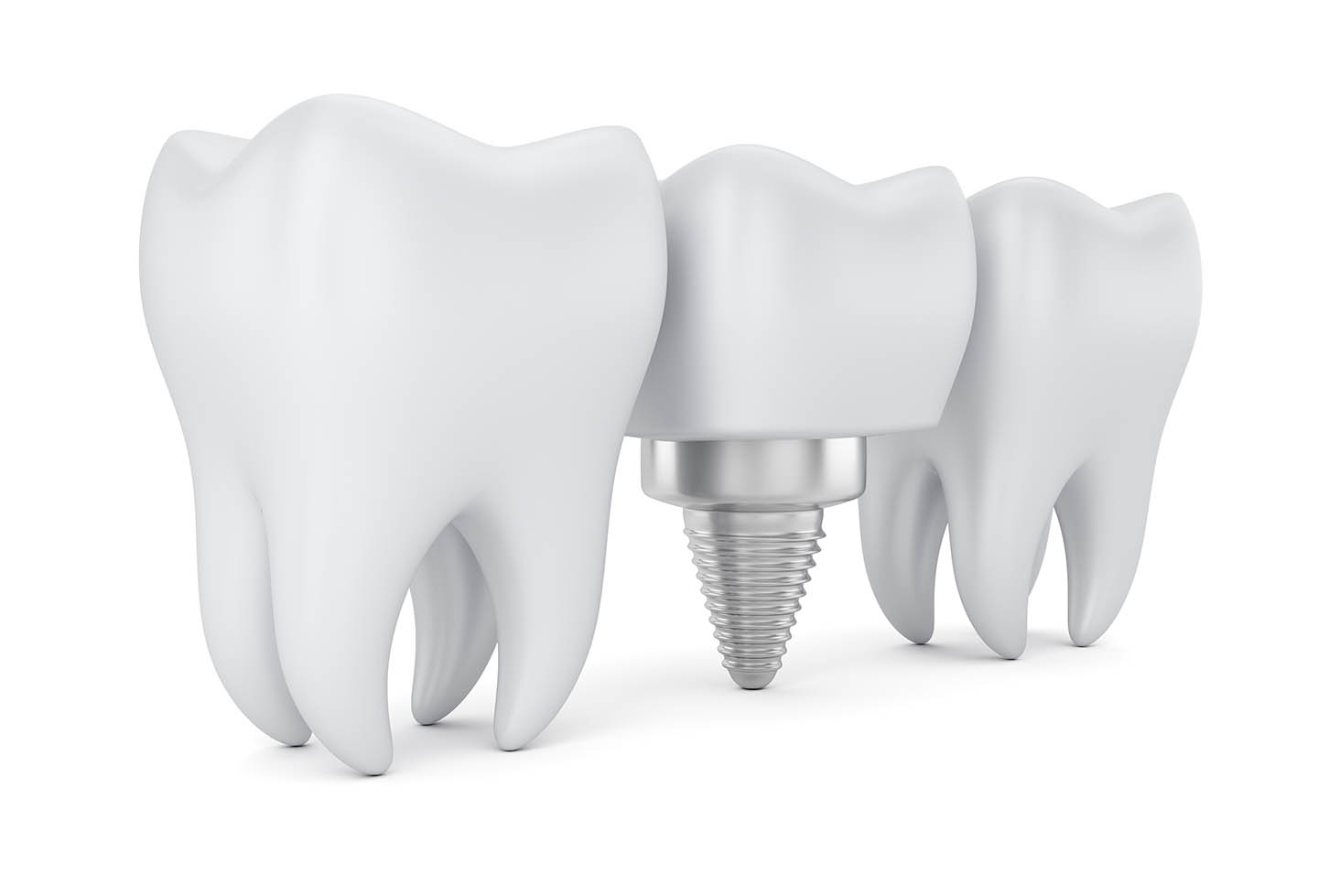 graphic of single-tooth implant
