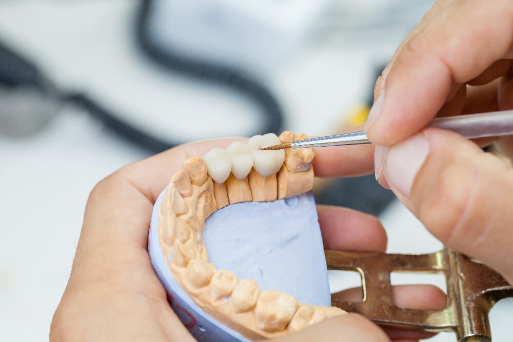 Dentist with crowns