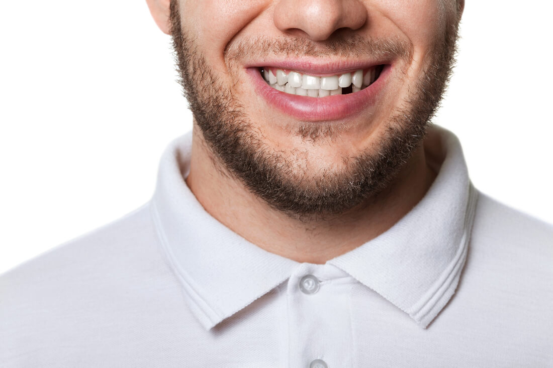 The Top 4 Reasons You Should Replace Missing Teeth Right Away