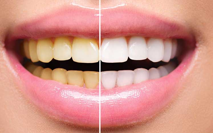 Photo illustrating the difference after using teeth whitening