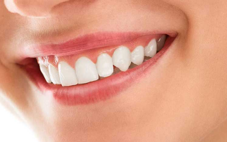 Photo of a close up smile