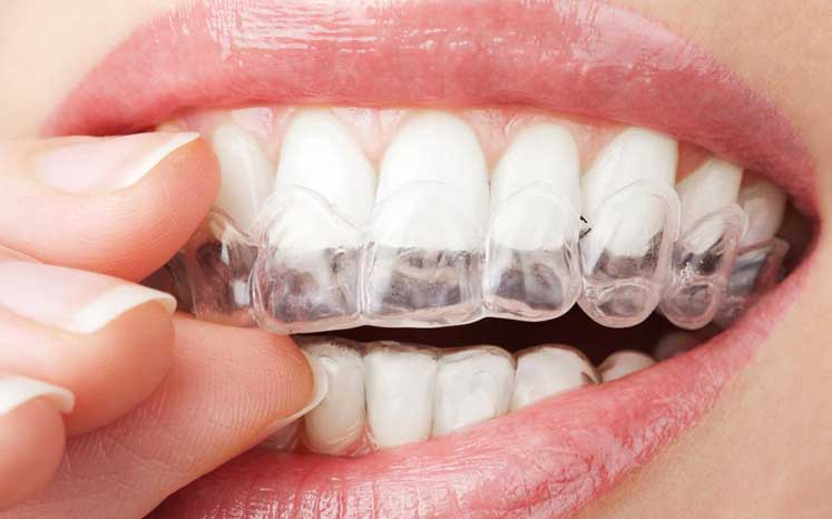 Photo of an Invisalign aligner