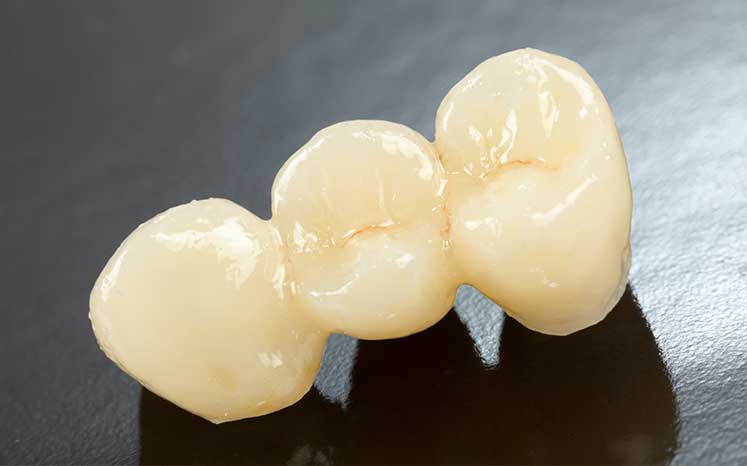 Photo of a dental bridge
