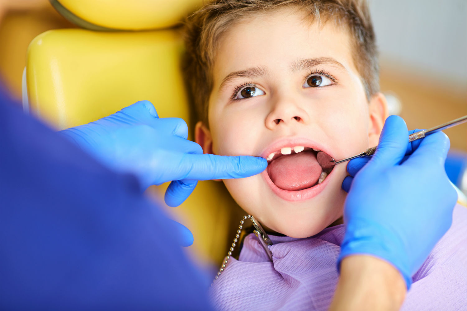 Why Are My Kid's Teeth Yellow?