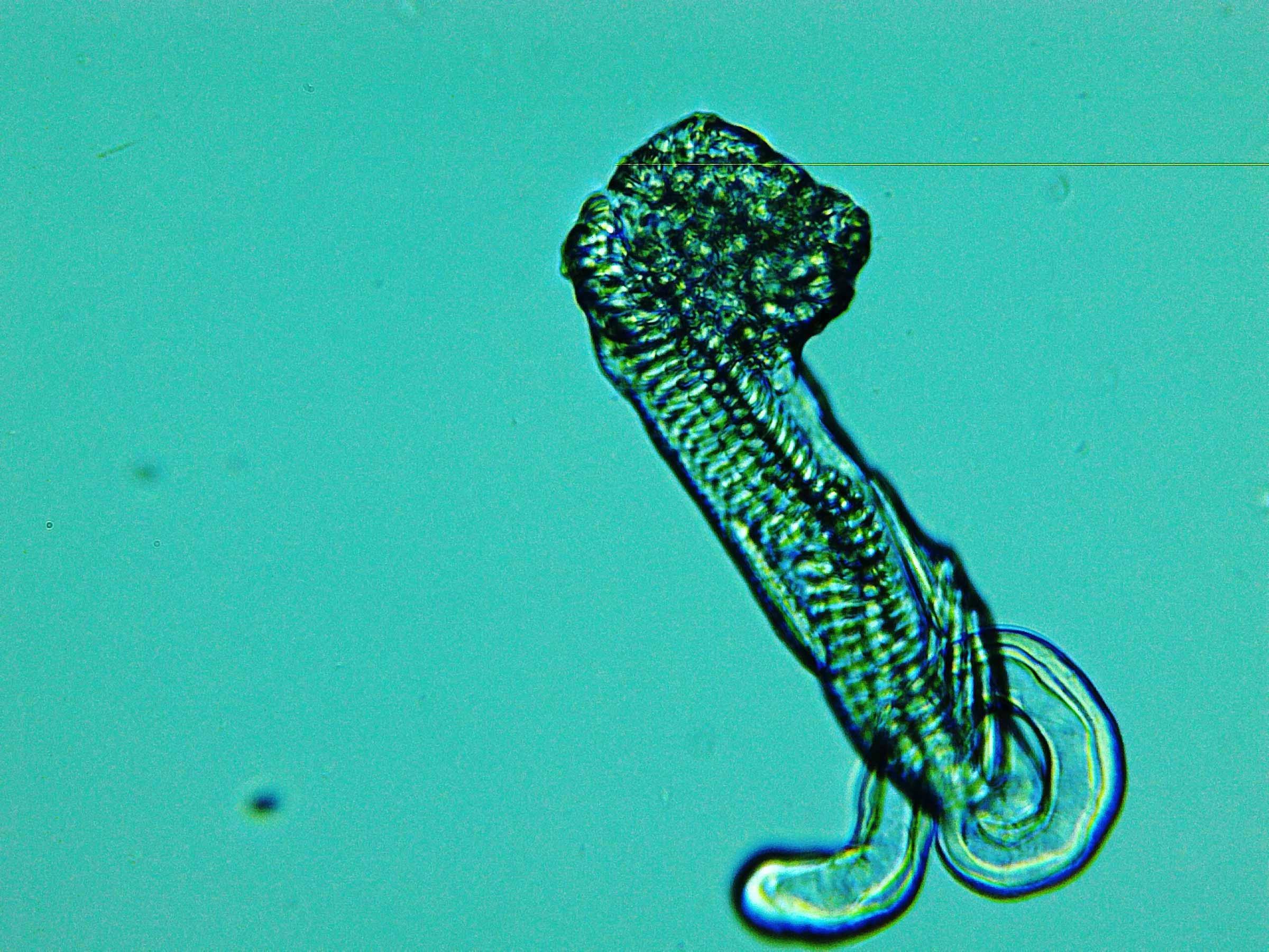 mystery plankton