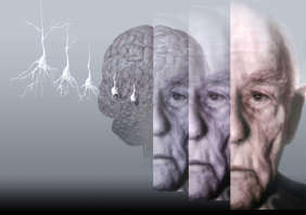 Half the population above the age of 85 suffers with problems of memory, thinking and behavior.