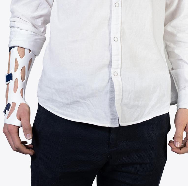 Impression 3D pour l'orthopédie avec une attelle sur mesure et aérée.
