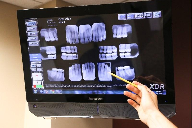 X Rays of teeth in an exam room