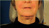 After Corrective Fillers
